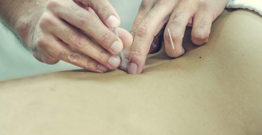 Lumbalgia y Acupuntura
